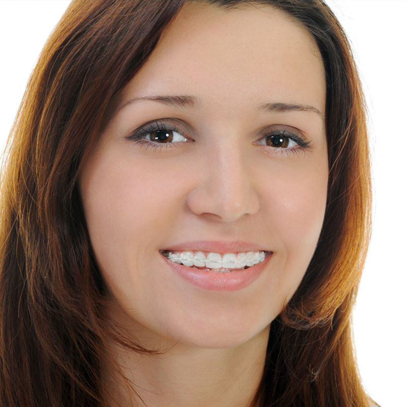 adult orthodontic treatment with braces