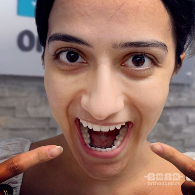 inbrace lingual braces at Shin Orthodontics