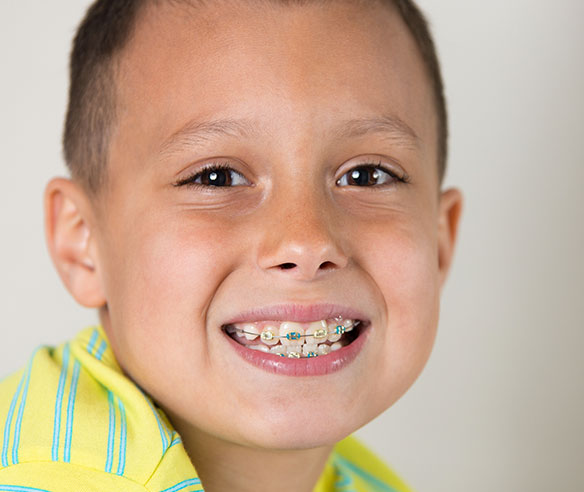 metal braces at Shin Orthodontics